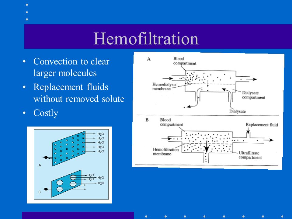 Hemofiltration Convection to clear larger molecules