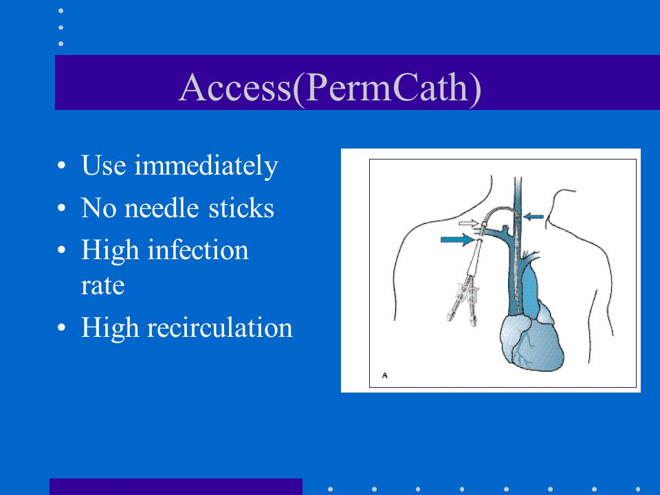 Access(PermCath) Use immediately No needle sticks High infection rate