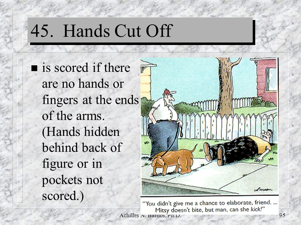 45. Hands Cut Off