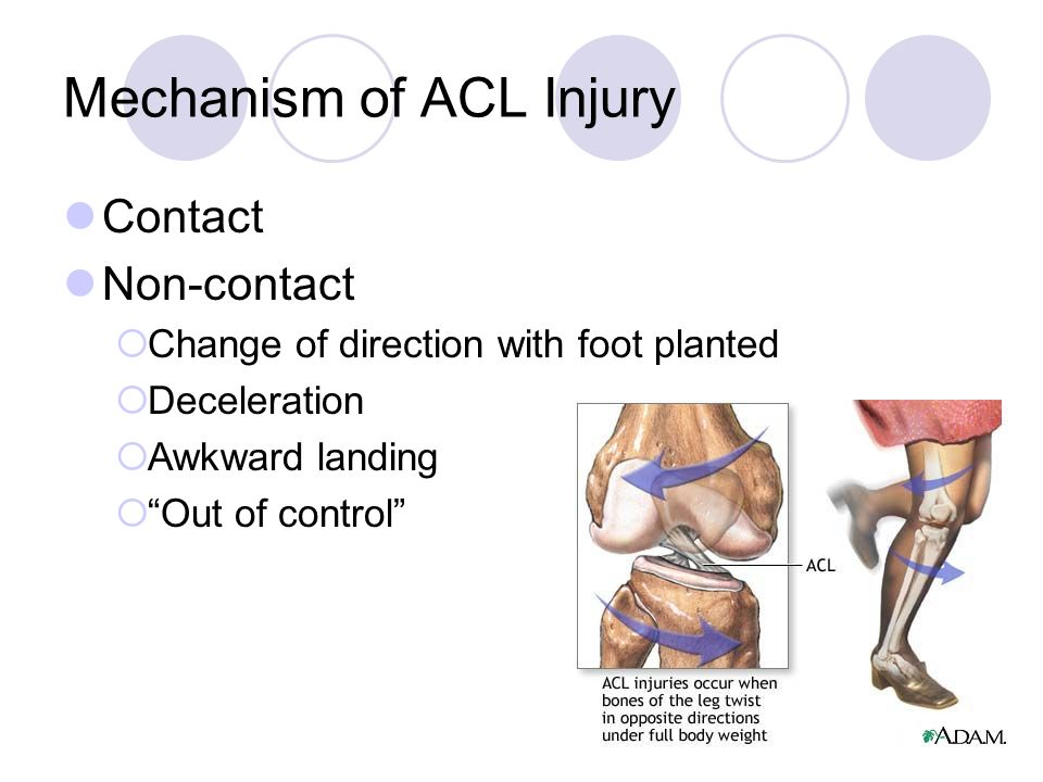 Mechanism of ACL Injury