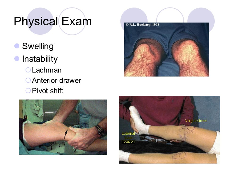 Physical Exam Swelling Instability Lachman Anterior drawer Pivot shift