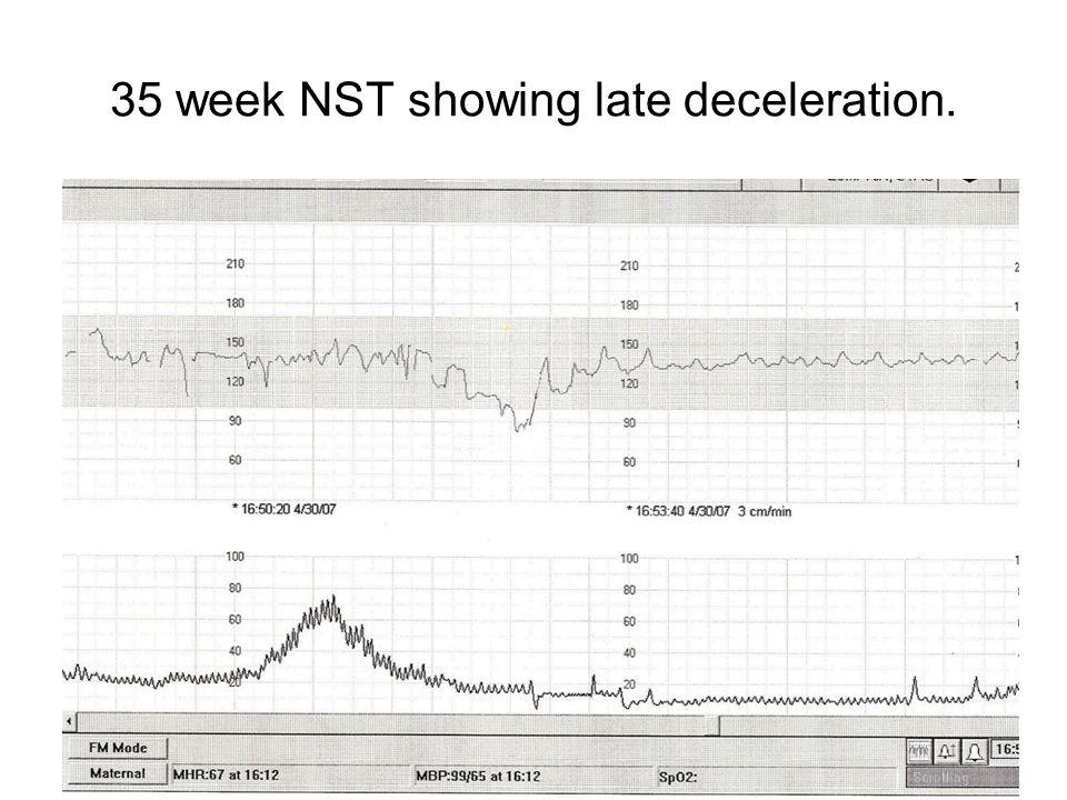 35 week NST showing late deceleration.