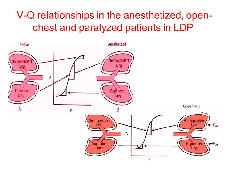 V-Q relationships in the anesthetized, open-chest and paralyzed patients in LDP