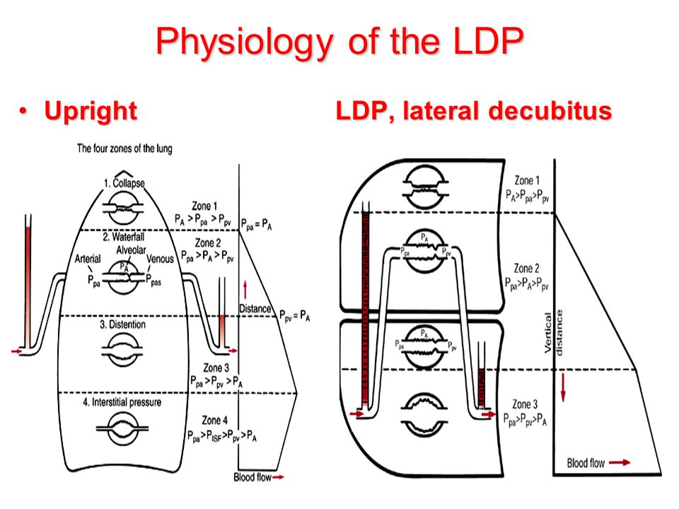 Physiology of the LDP Upright LDP, lateral decubitus