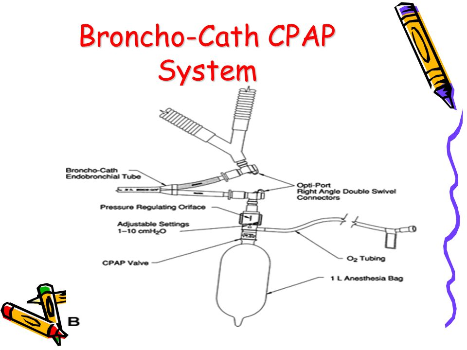 Broncho-Cath CPAP System