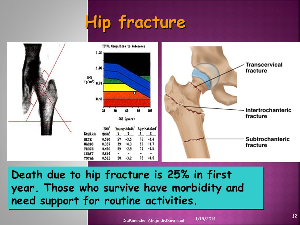 Hip fracture Death due to hip fracture is 25% in first year. Those who survive have morbidity and need support for routine activities.