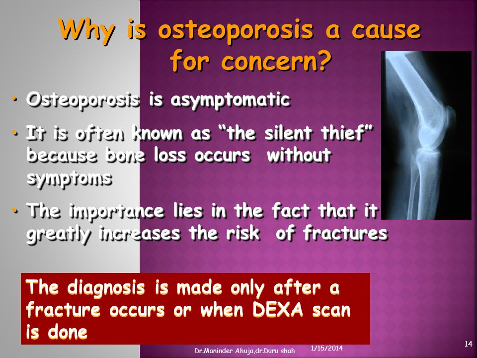 Why is osteoporosis a cause for concern