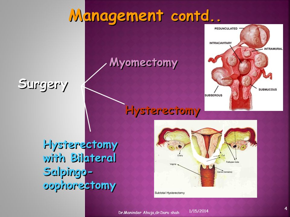 Management contd.. Surgery Myomectomy Hysterectomy