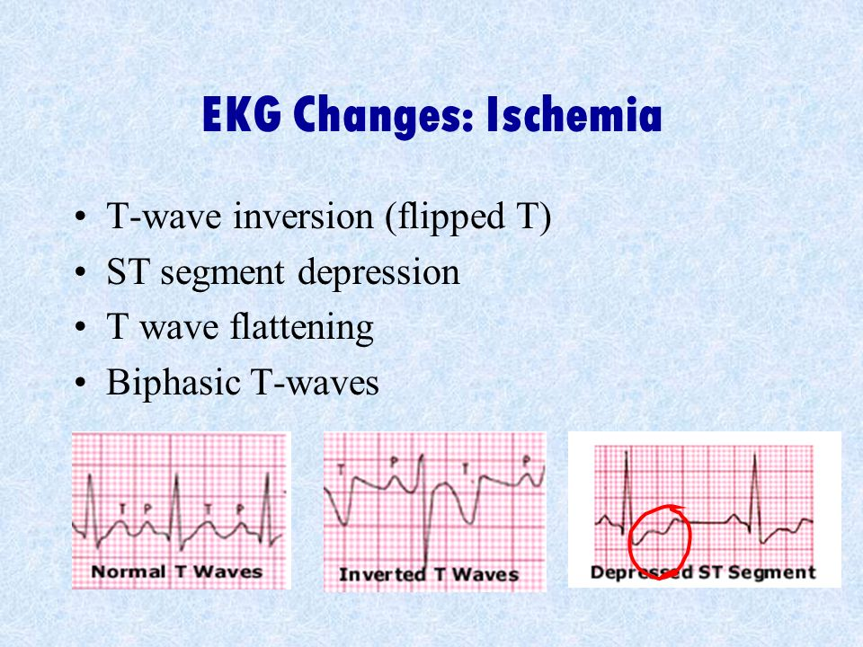 EKG Changes: Ischemia T-wave inversion (flipped T)