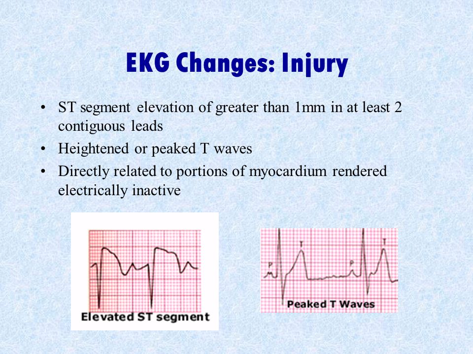 EKG Changes: Injury ST segment elevation of greater than 1mm in at least 2 contiguous leads. Heightened or peaked T waves.