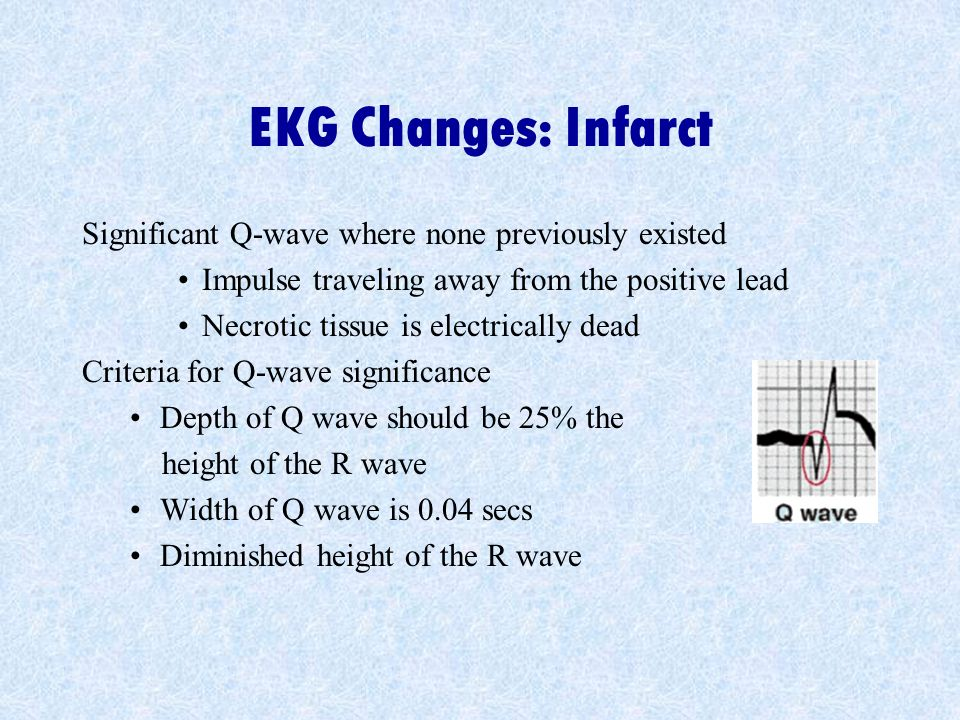 EKG Changes: Infarct Significant Q-wave where none previously existed