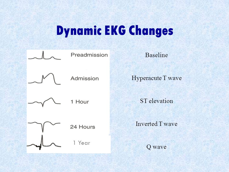 Dynamic EKG Changes Baseline Hyperacute T wave ST elevation