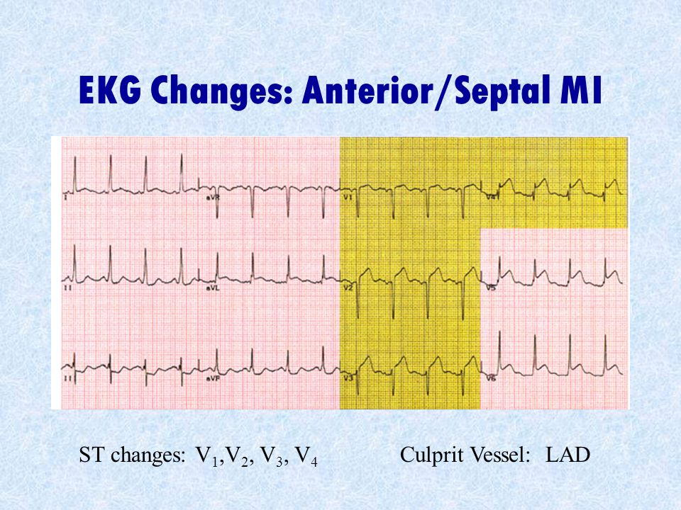 EKG Changes: Anterior/Septal MI