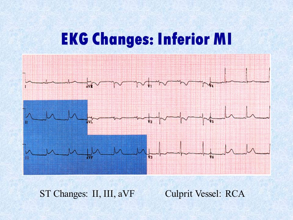 EKG Changes: Inferior MI
