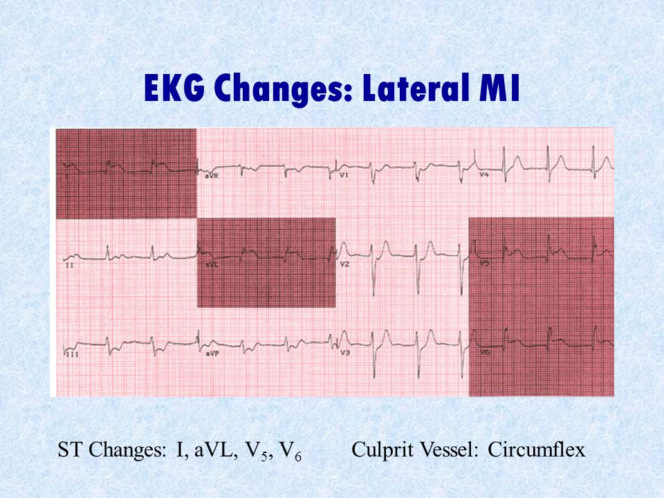 EKG Changes: Lateral MI