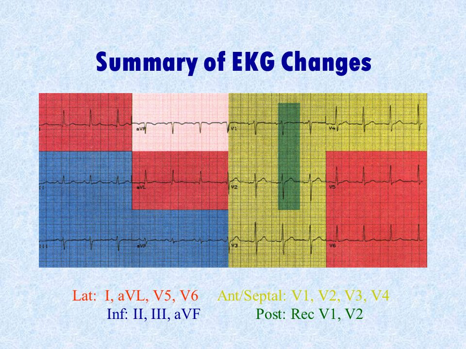 Summary of EKG Changes Lat: I, aVL, V5, V6 Ant/Septal: V1, V2, V3, V4