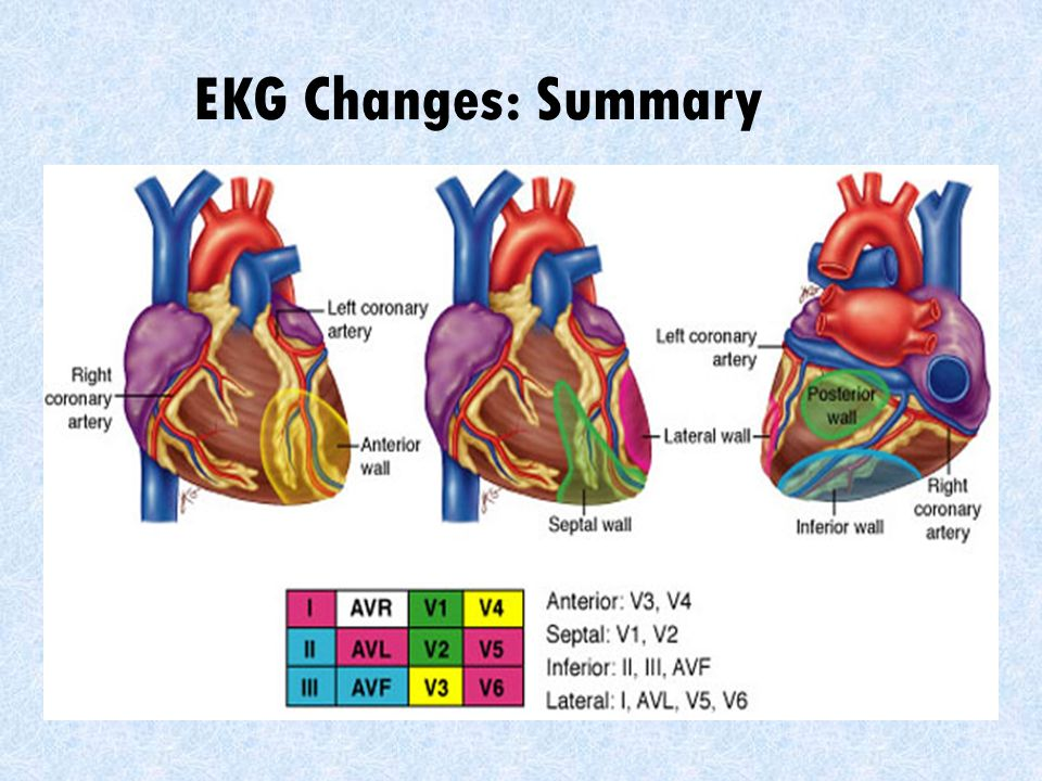 EKG Changes: Summary