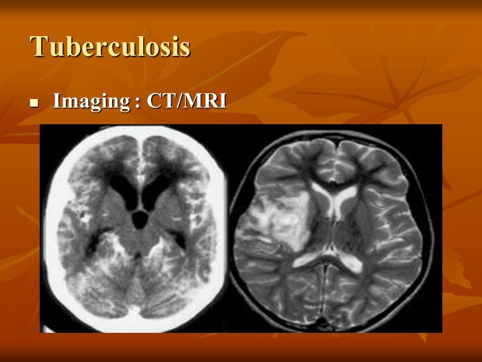 Tuberculosis Imaging : CT/MRI