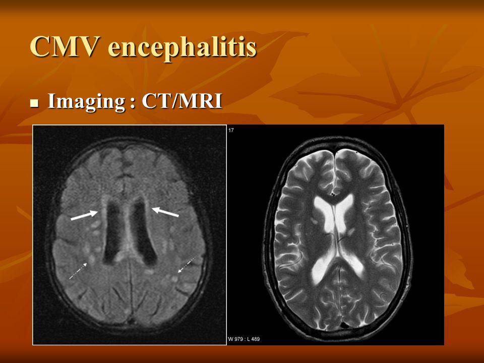 CMV encephalitis Imaging : CT/MRI