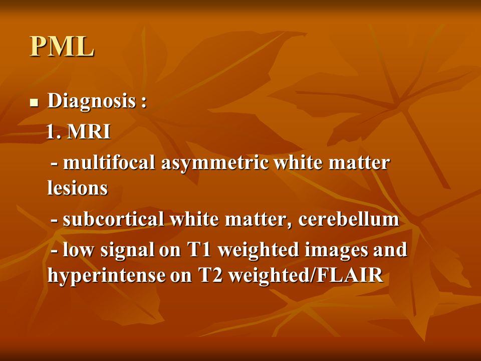PML Diagnosis : 1. MRI - multifocal asymmetric white matter lesions