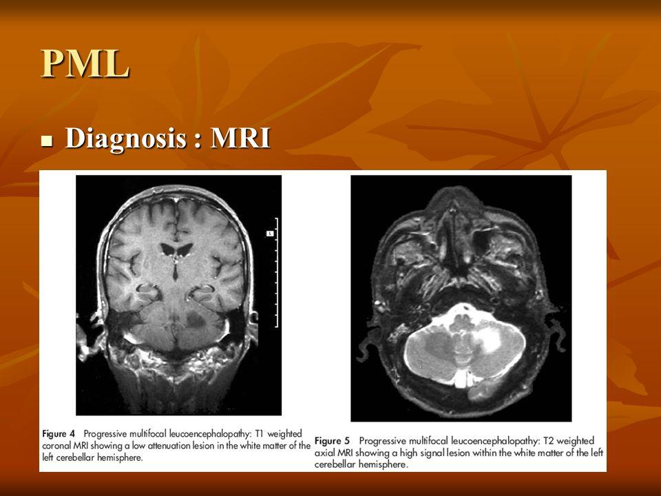 PML Diagnosis : MRI