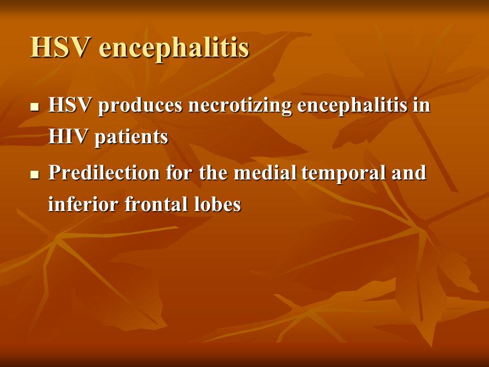 HSV encephalitis HSV produces necrotizing encephalitis in HIV patients