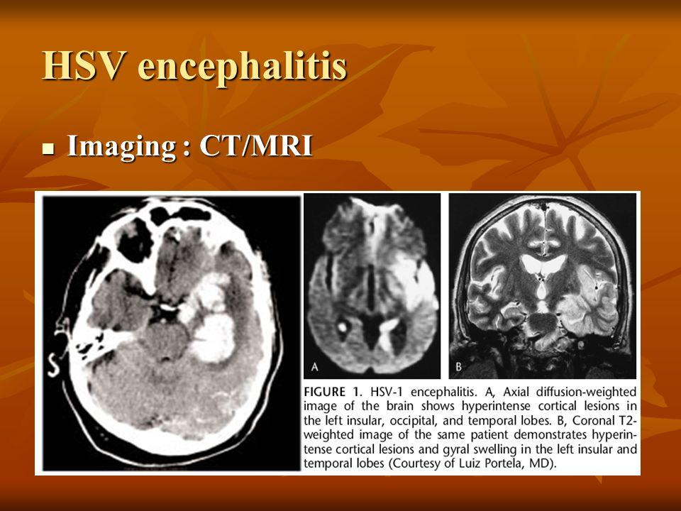 HSV encephalitis Imaging : CT/MRI