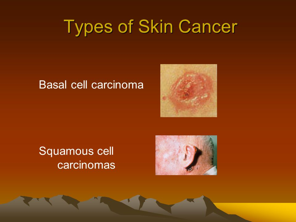 Types of Skin Cancer Basal cell carcinoma Squamous cell carcinomas