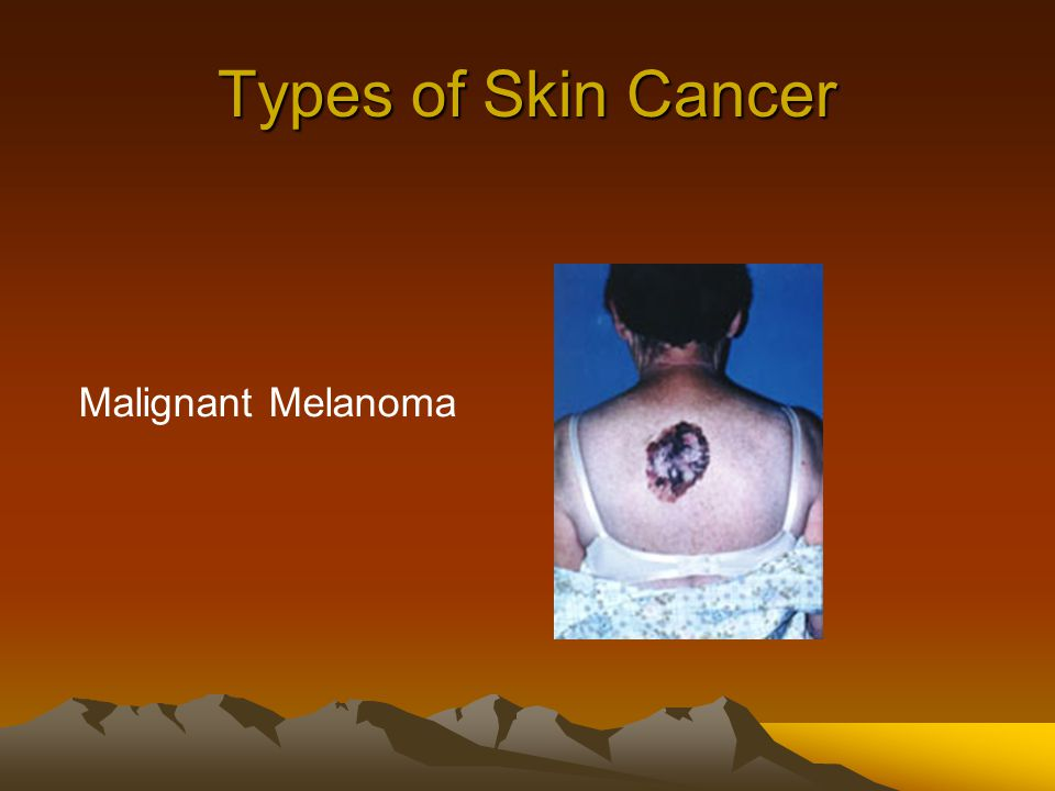 Types of Skin Cancer Malignant Melanoma