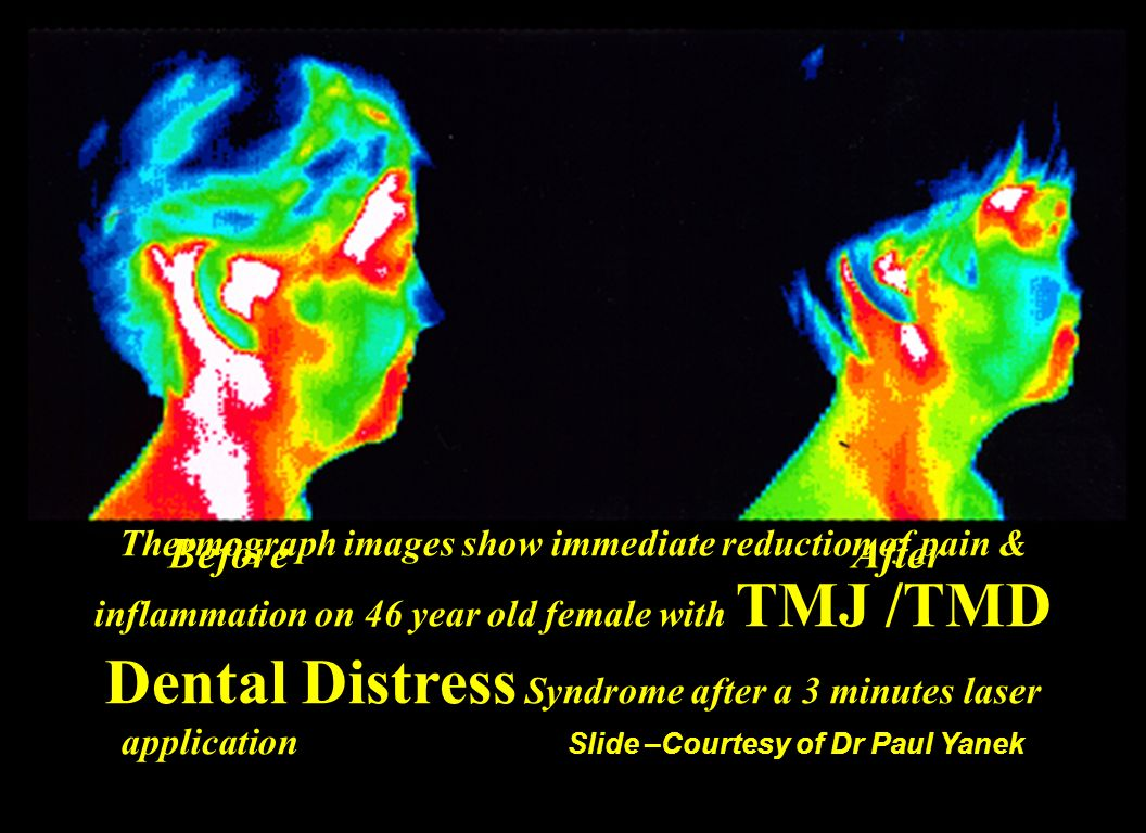 Thermography is a non invasive way of determining inflammation and blood flow. It takes an experienced doctor to read the thermograms accurately, but in general red and white is bad, green and yellow is good. This thermogram illustrates the reduction of inflammation to the tight muscles that are concerned with the TMJ or more correctly referred to as TMD (tempromandibular dysfunction) These results were achieved after just three minutes of low level laser use.