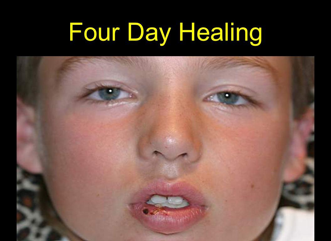 Four Day Healing