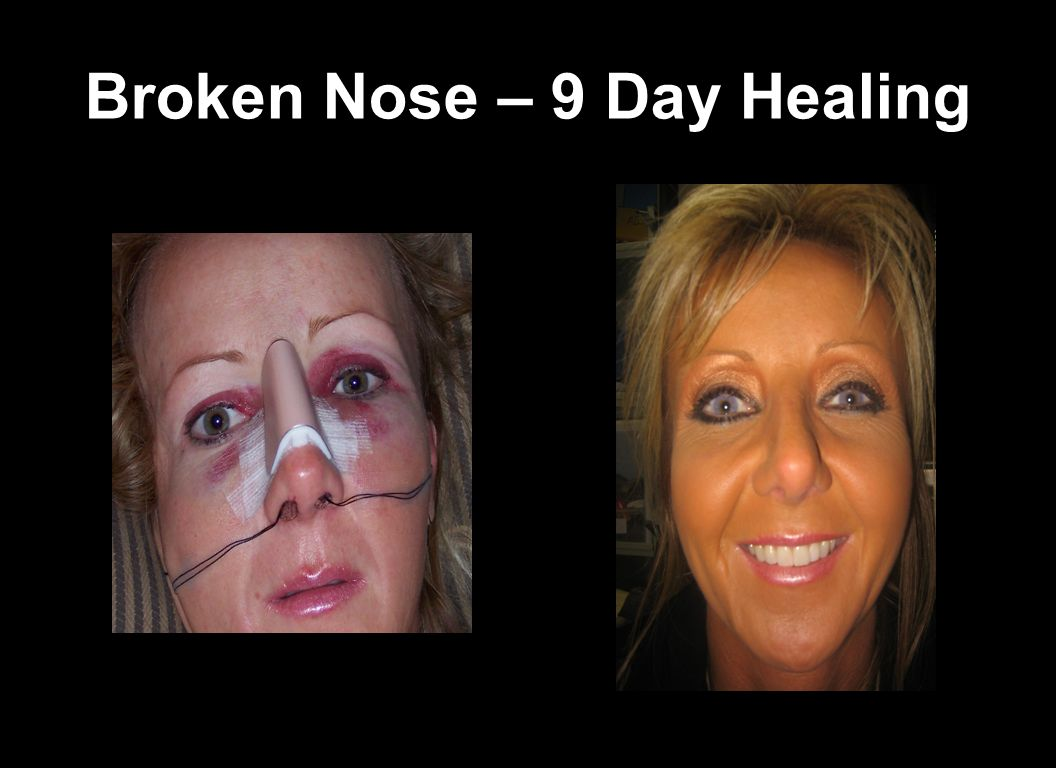 Broken Nose – 9 Day Healing