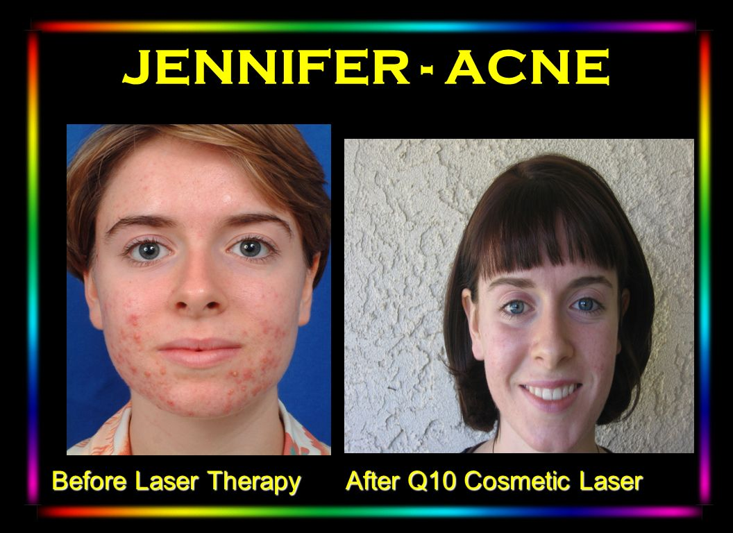 JENNIFER - ACNE Winter 2003 Before Laser Therapy