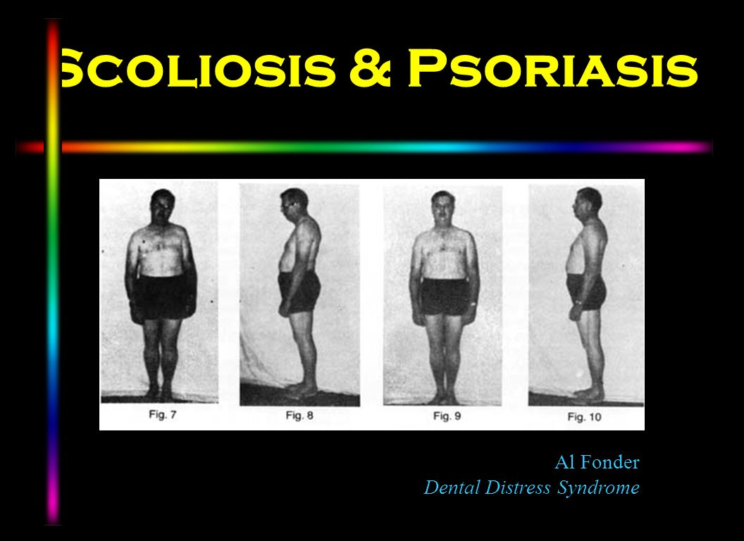 Scoliosis & Psoriasis Al Fonder Dental Distress Syndrome