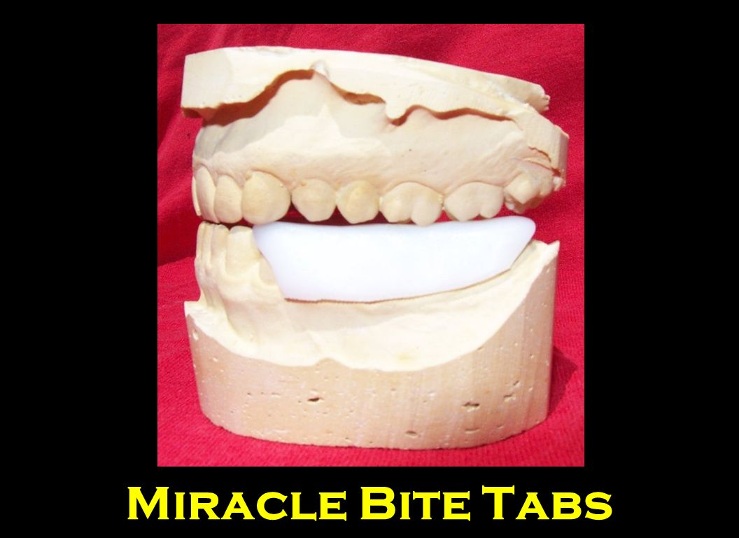 Here are Miracle bite Tabs on Study Models
