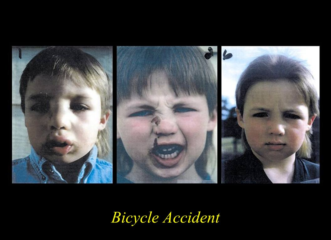 This 5 year old had a bicycle accident