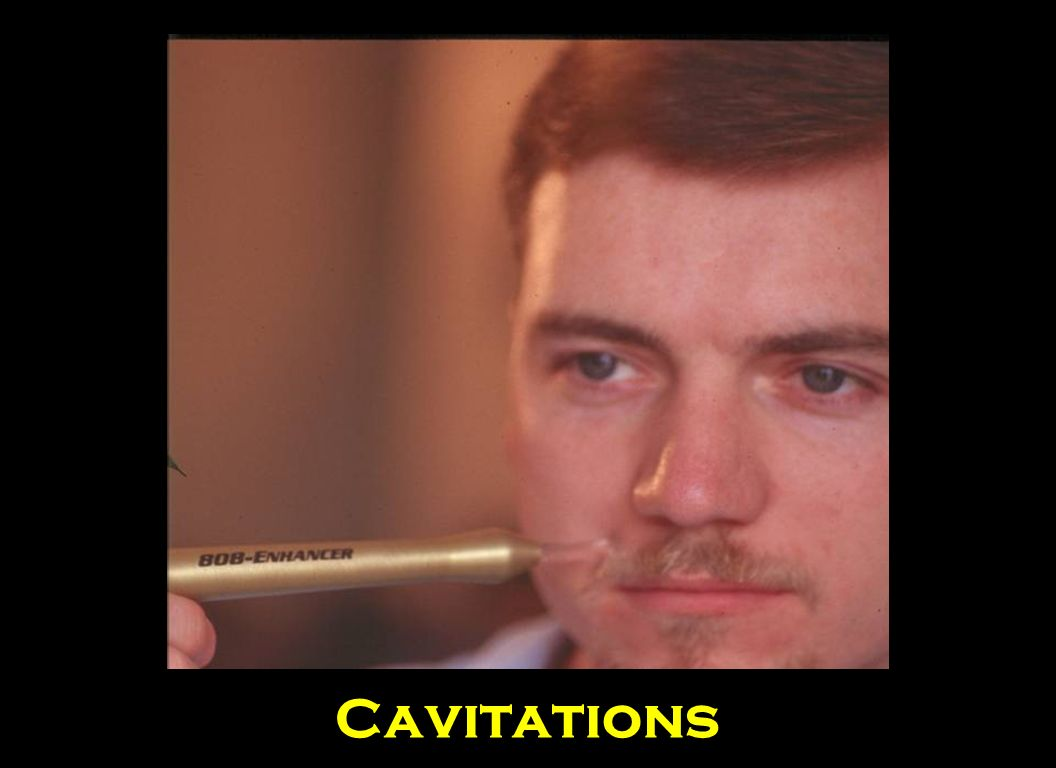 This slide demonstrates the use of the 808 Infrared Probe enhancer to treat cavitations or bone problems