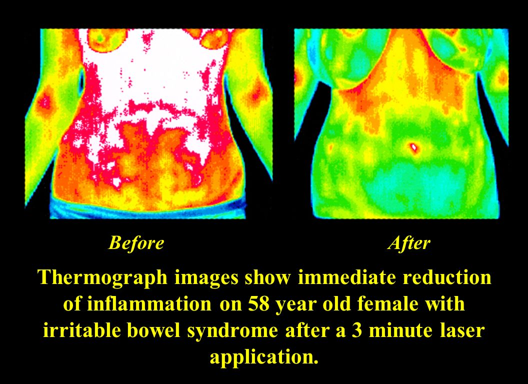 Thermography is a good non-invasive way to evaluate inflammation