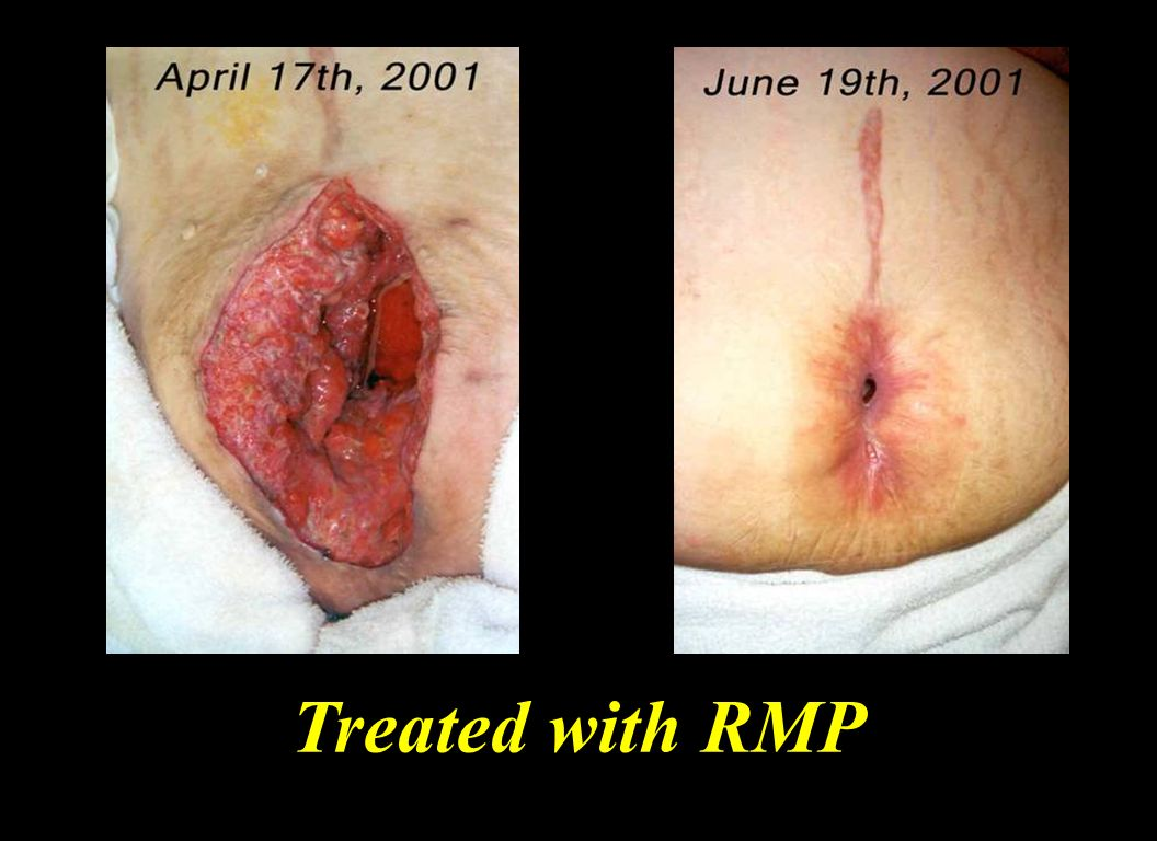 Dr Stephan reported that the bacteria pus visible in the enlarged picture on April 17th disappeared in the first two days of laser use.
