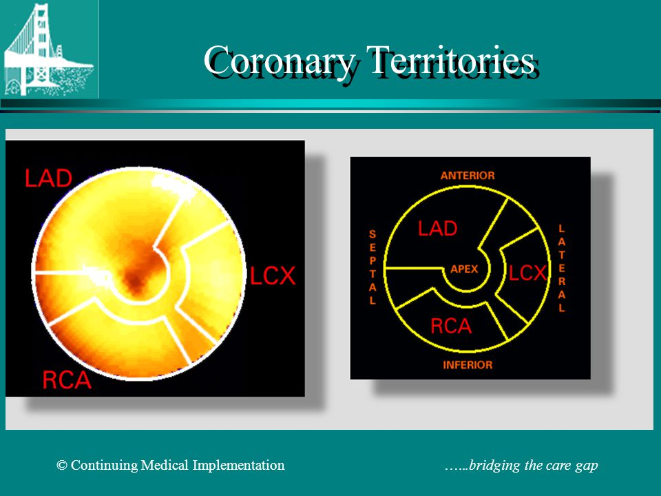 Coronary Territories © Continuing Medical Implementation …...bridging the care gap.