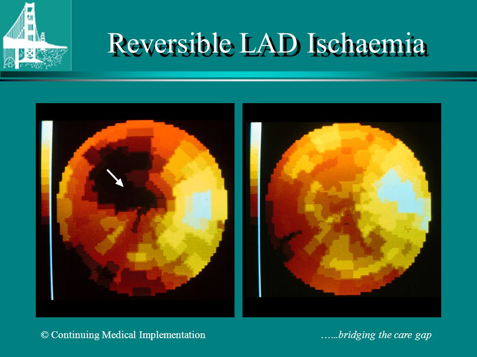 Reversible LAD Ischaemia
