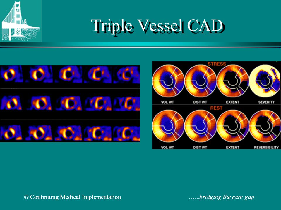 Triple Vessel CAD © Continuing Medical Implementation …...bridging the care gap.
