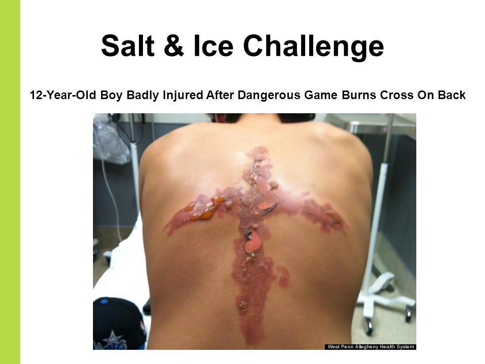 Salt & Ice Challenge 12-Year-Old Boy Badly Injured After Dangerous Game Burns Cross On Back