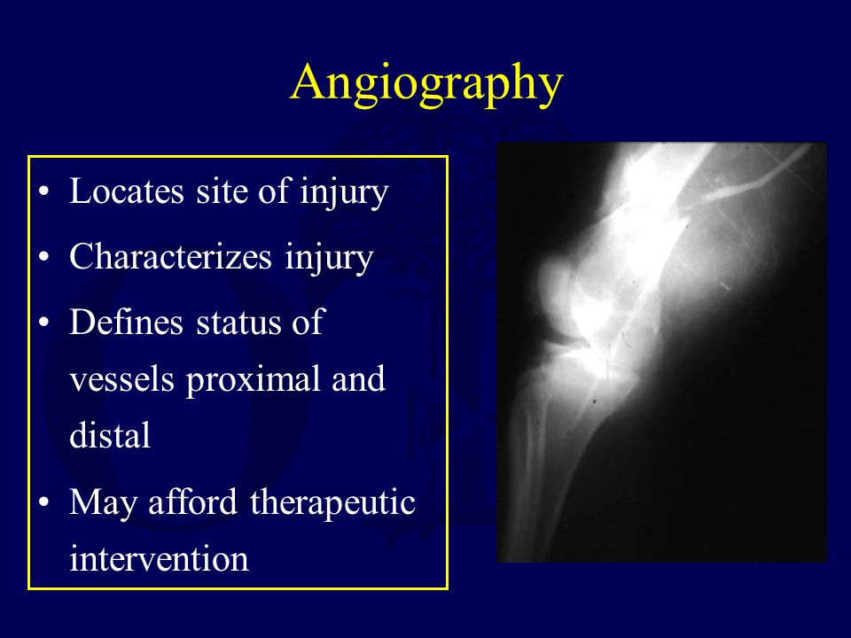 Angiography Locates site of injury Characterizes injury