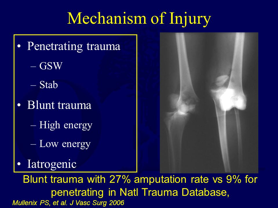 Mechanism of Injury Penetrating trauma Blunt trauma Iatrogenic GSW