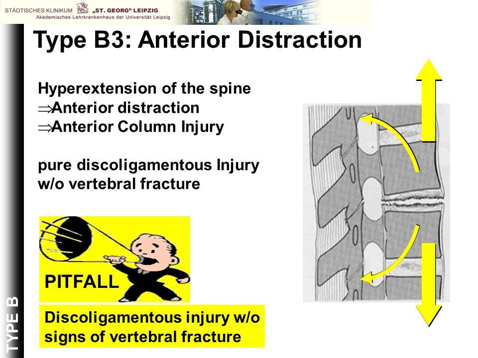 Type B3: Anterior Distraction
