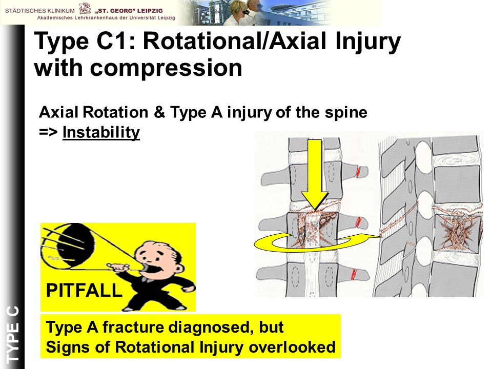 Type C1: Rotational/Axial Injury with compression