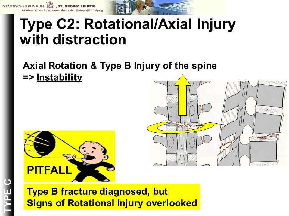 Type C2: Rotational/Axial Injury with distraction