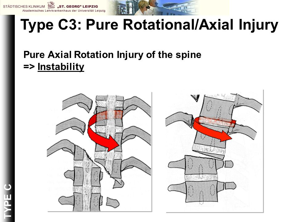 Type C3: Pure Rotational/Axial Injury