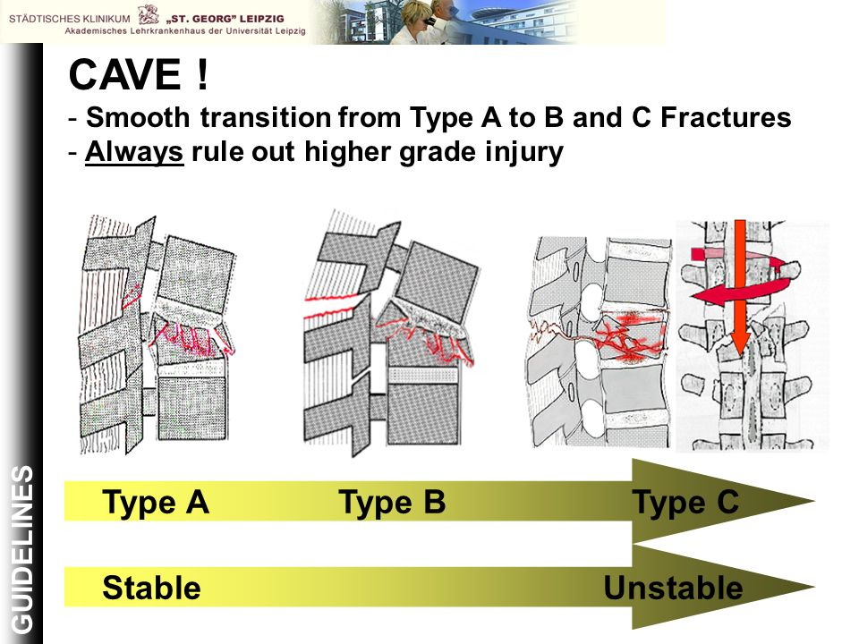 CAVE ! Type B Type A Stable Type C Unstable